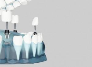 istanbul-dis-implantı